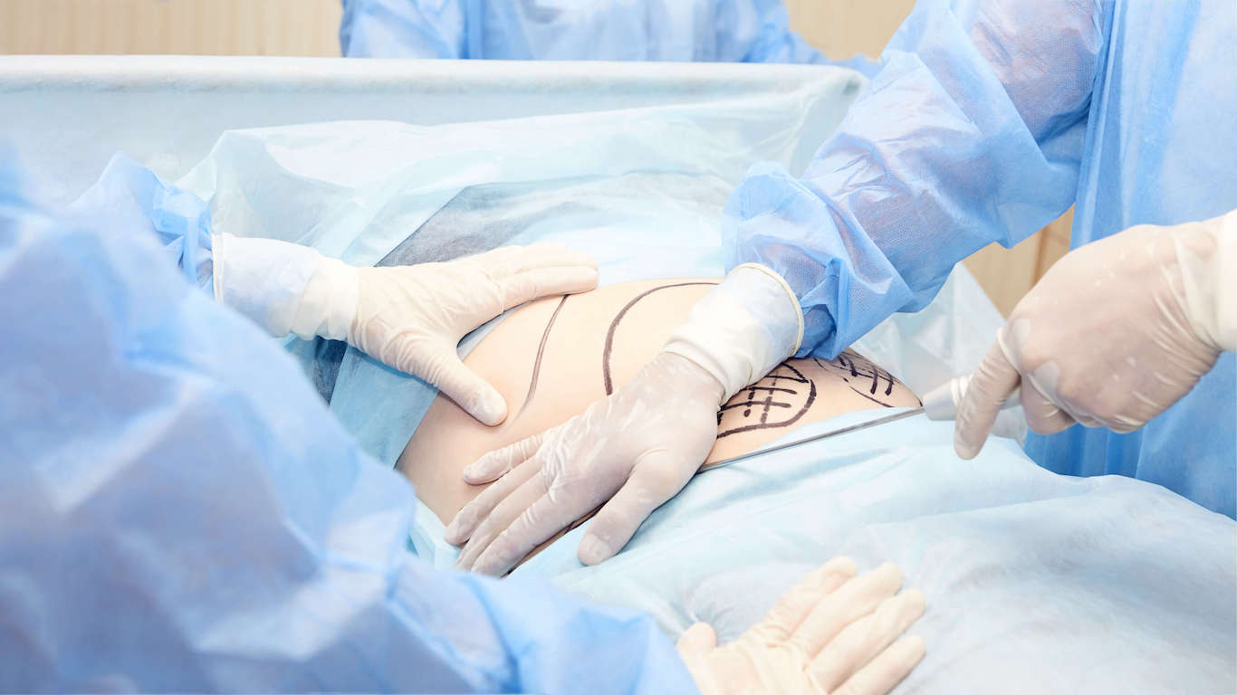 bariatric surgery stomach reset